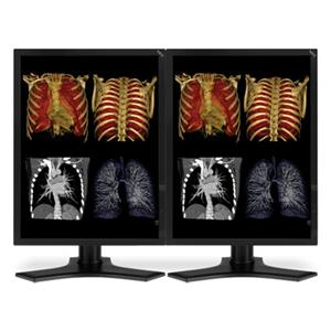 "NEC Two 21"" Color 3-Megapixel Medical Diagnostic Monitors MDC3MP-BNDL"