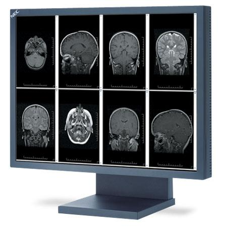"NEC 21.3"" 2MP Grayscale Medical Grade LCD Display, 700:1 Contrast Ratio, 1600x1200 Resolution, 35ms Response Time"